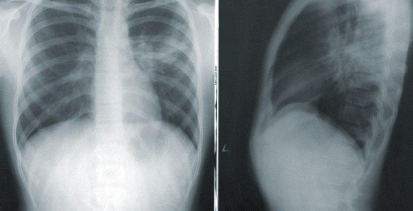 Radioiodtherapie bei Schilddrüsenerkrankungen