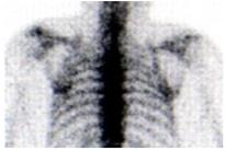 Knochenszintigraphie